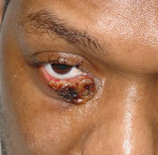 Herpes_simplex_infection_2_070310