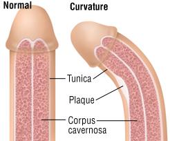 Penile-deformities